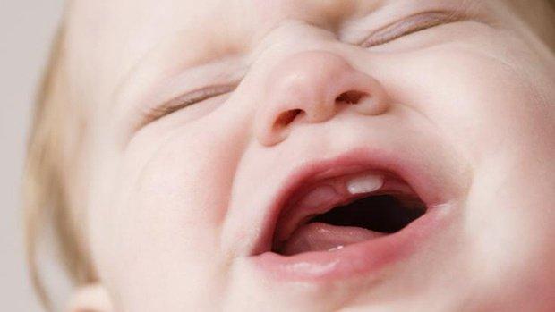 Mơ thấy mọc răng